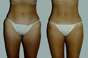 mini-abdominoplastia