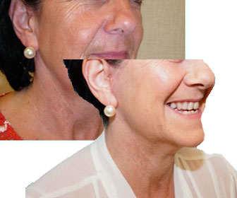 minilifting facial España