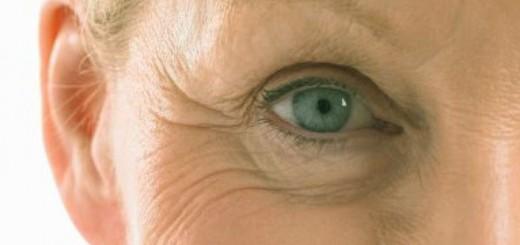 mujer con arrugas en la cara