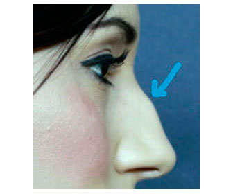 nariz prominente