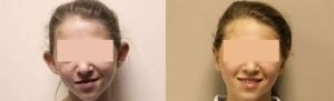 operacion de orejas
