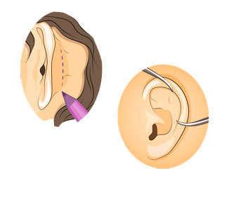 operacion para eliminar las orejas de soplillo