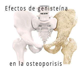 osteoporosis y densidad ósea