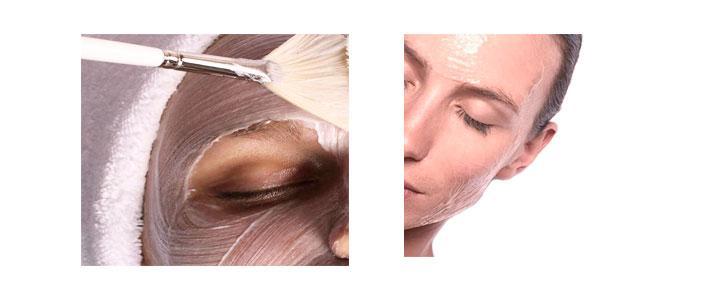 Aplicación de peeling con ácido retinoico