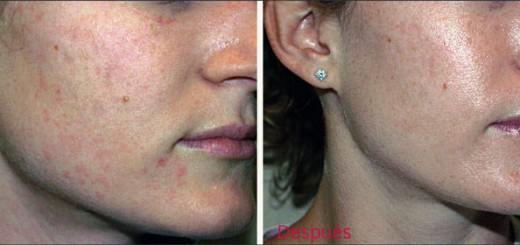 peeling facial antes y después