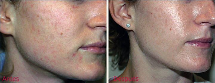 Peeling facial para arrugas