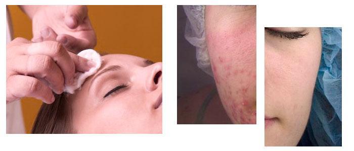 peeling quimico para el acné
