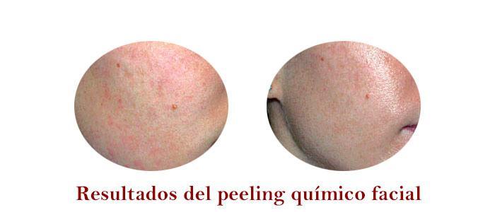 Resultados del peeling químico facial o exfoliación química