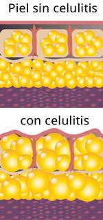piel con celulitis