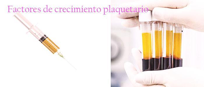 Plasma rico en plaquetas antiarrugas