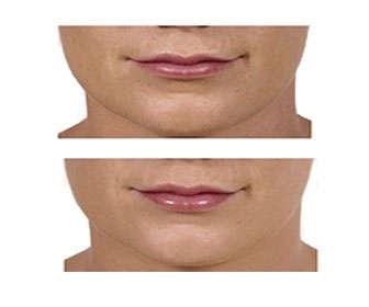 queiloplastia aumento de labios