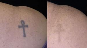 quitarse un tatuaje