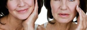 radiofrecuencia facial antes y después