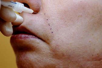 rejuvenecimiento facial con acido hialuronico