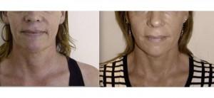 rejuvenecimiento facial resultados