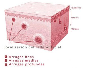 Estructura del relleno dermico