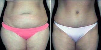 resultados liposuccion abdominal