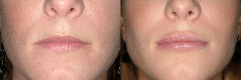 Resultados relleno de labios