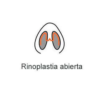 rinoplastia abierta