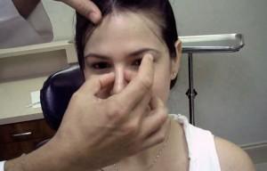 rinoplastia postoperatorio