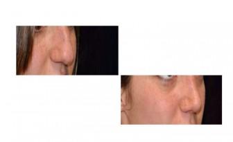 rinoseptoplastia antes y despues