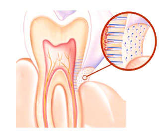 sensibilidad dental causas