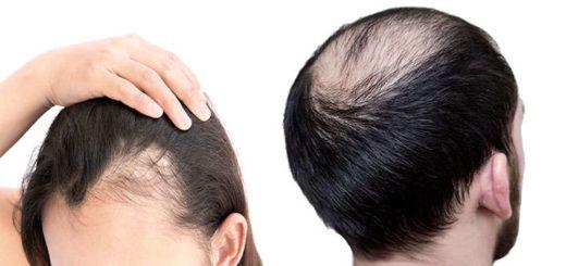 solucion a la alopecia