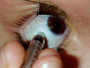 solucion edema macular cistoide