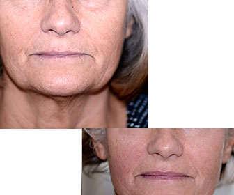 thermage facial funciona con varias sesiones