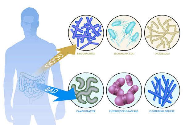tipos de probioticos