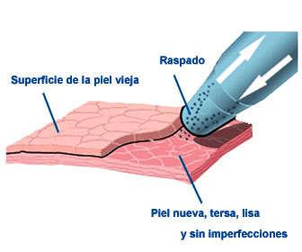 tratamiento con microdermoabrasion