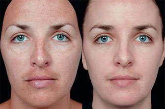 tratar sintomas acne