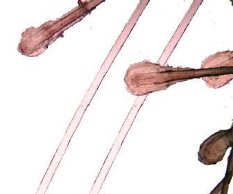 tricograma para cabello y la salud del cuero cabelludo