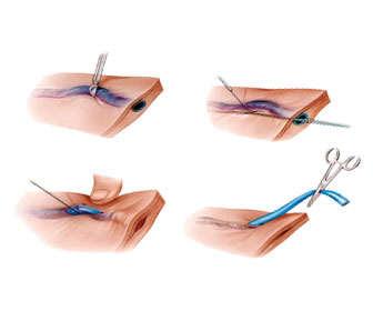 Operación de varices o safenectomía
