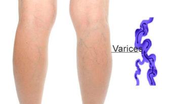 Síntomas de varices en las piernas