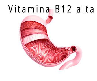 vitamina b12 alta, exceso o hipervitaminosis