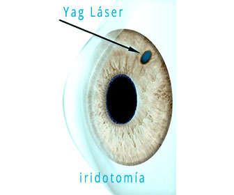 yag laser iridotomia